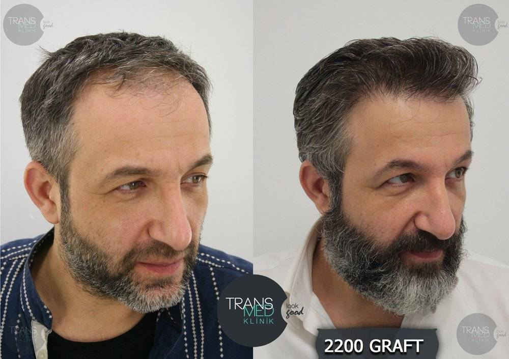 hair-before-after-4.jpg